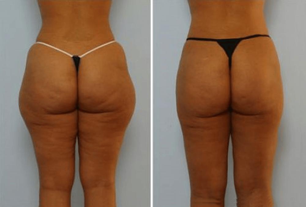 До и после миостимуляции