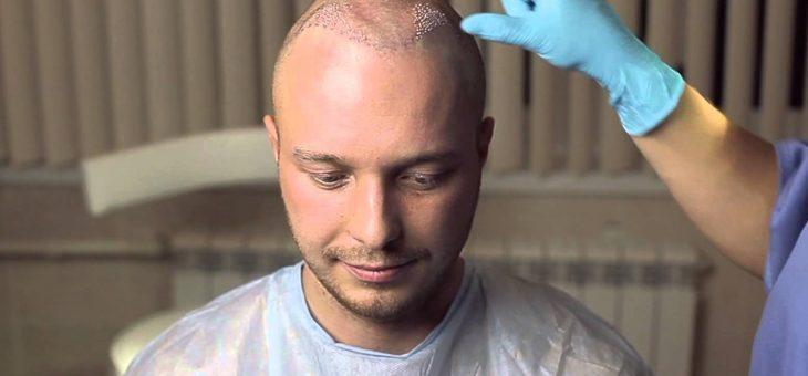 Пересадка волос — стоимость, методы, последствия, отзывы, противопоказания