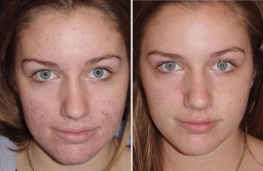 дегтярное мыло для волос до и после