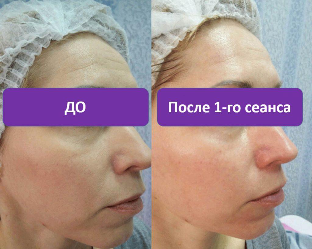 есть шанс, карбокситерапия лица фото до и после если