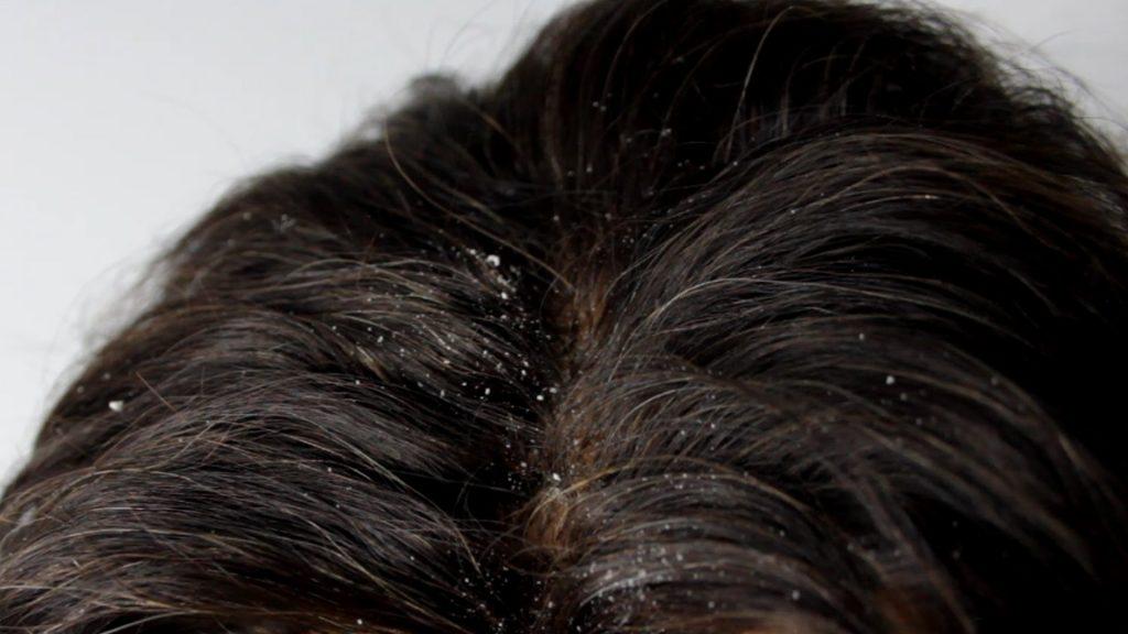 Перхоть на волосах