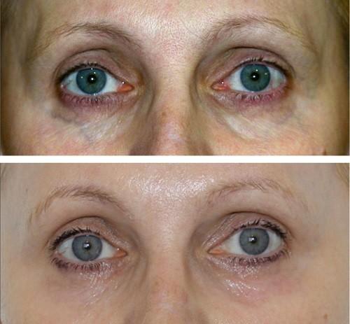 Плазмолифтинг лица фото до и после