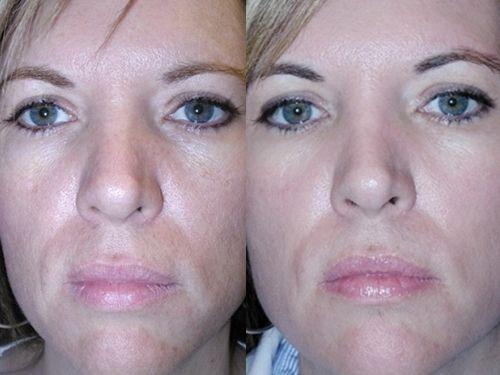 Карбоновый пилинг фото до и после