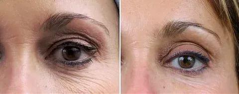 Дарсонваль для лица до и после