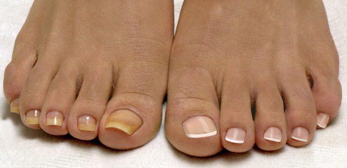 Грибок ногтей на ногах: виды, способы избавления и лучшие средства