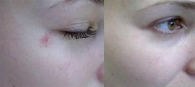 Сосудистые звездочки на лице до и после