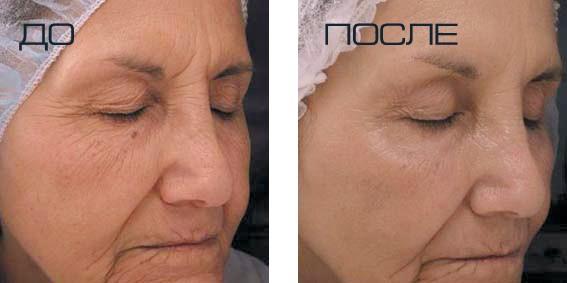 газожидкостный пилинг лица отзывы фото до и после