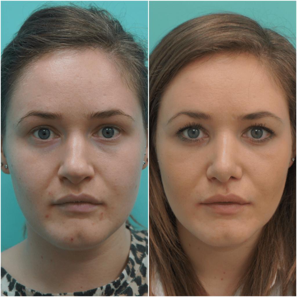липолитики для лица фото до и после