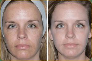 фракционная мезотерапия фото до и после