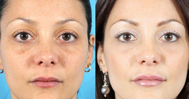 вакуумная чистка лица фото до и после