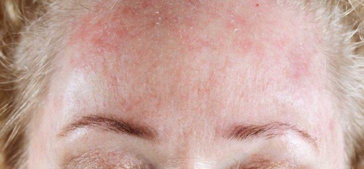 Псориаз на лице: способы лечения