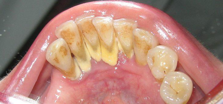 Лучшие способы лечения зубного камня