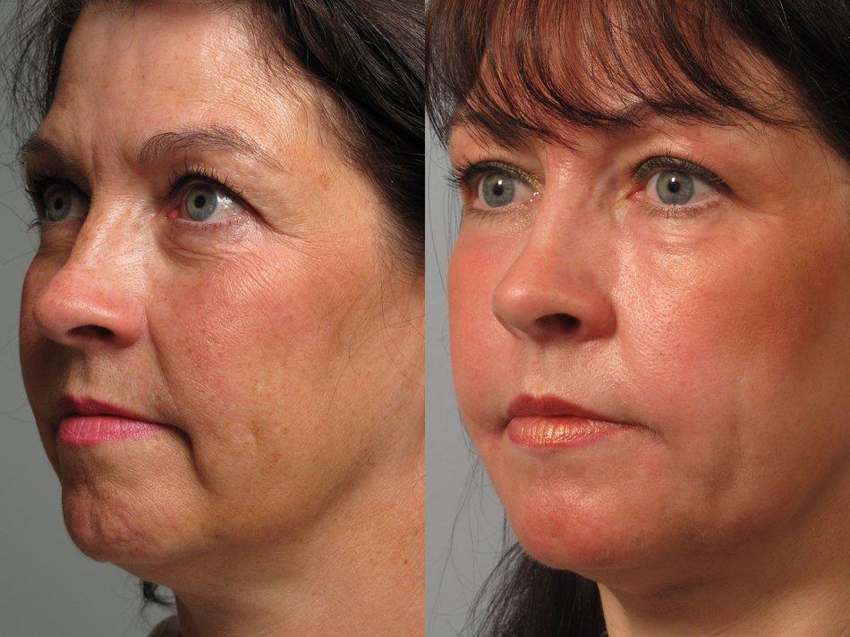 брыли на лице до и после