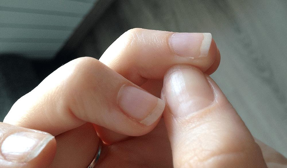Заусенцы на пальцах - причины появления и способы лечения