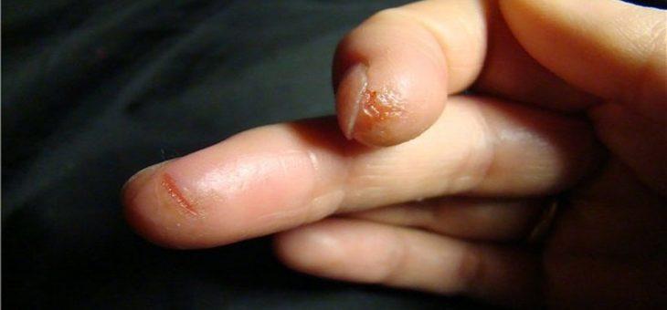 Трескается кожа на пальцах рук – причины, диагностирование, лечение